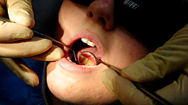 Child dental treatments down 70% in the year after lockdown